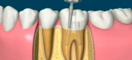 Capturefd 272x125 - اموزش تصویری عصب کشی و روکش دندان