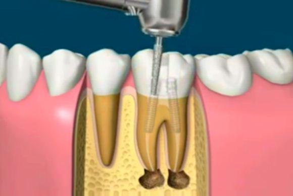 اموزش تصویری عصب کشی و روکش دندان