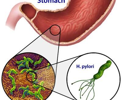 خوراکیهایی برای جلوگیری از عفونت میکروبی معده (هلیکوباکترپیلوری)