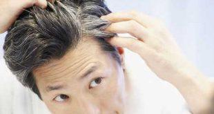 دلایل سفید شدن مو و راه های جلوگیری