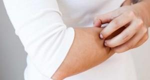 دلایل خشکی و خارش پوست و راه های درمان