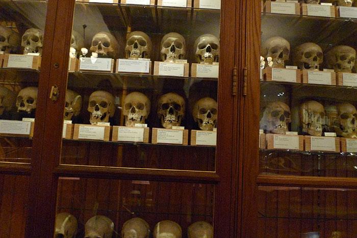 جمجمه های هرتل در موزه ماتر