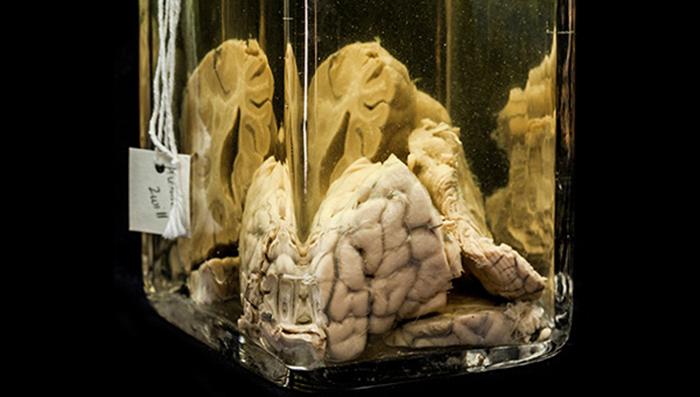 نمونه های ارائه شده در موزه ماتر