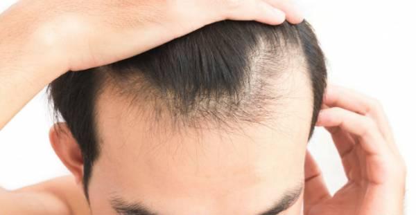 1 D8AFD984DB8CD984 D8B1DB8CD8B2D8B4 D985D988 - دلایل اصلی ریزش مو