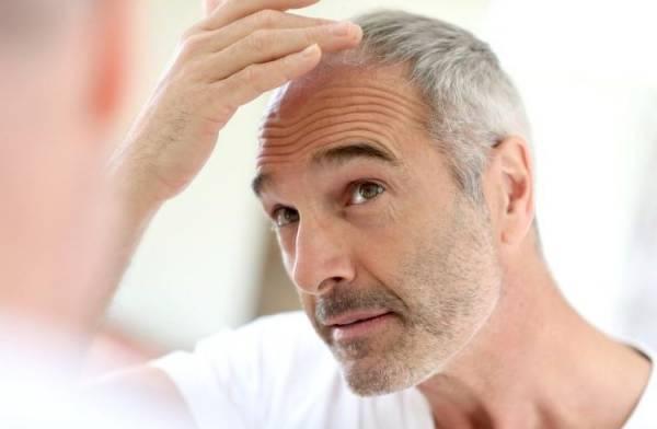 D8A7D981D8B2D8A7DB8CD8B4 D8B3D986 - دلایل اصلی ریزش مو