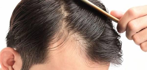 D8B1DB8CD8B2D8B4 D985D988 - دلایل اصلی ریزش مو