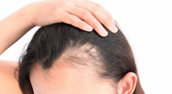 DAA9D986D8AFD986 D985D988 1 600x330 - دلایل اصلی ریزش مو
